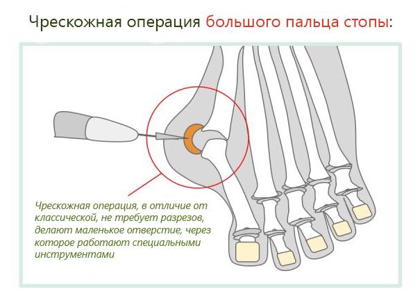 Чрескожная операция при вальгусе большого пальца стопы