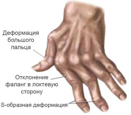 Серьезные деформации при большой стадии артрита