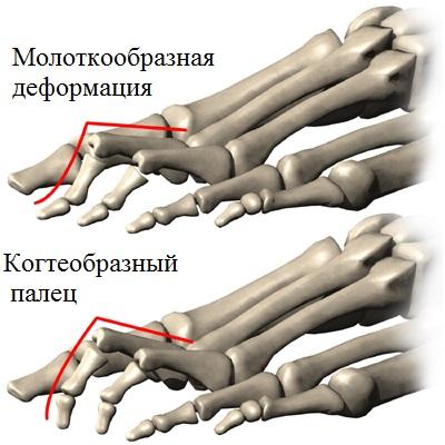 Деформации пальцев при полой стопе