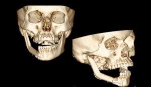 Деформация челюсти при остеомиелите