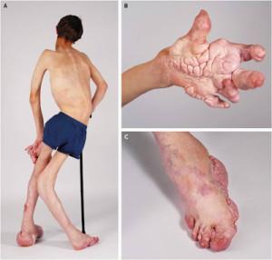 Деформация костей при синдроме Маффуччи