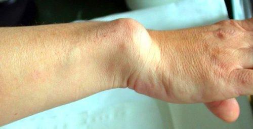 Деформация кости при мелореостозе