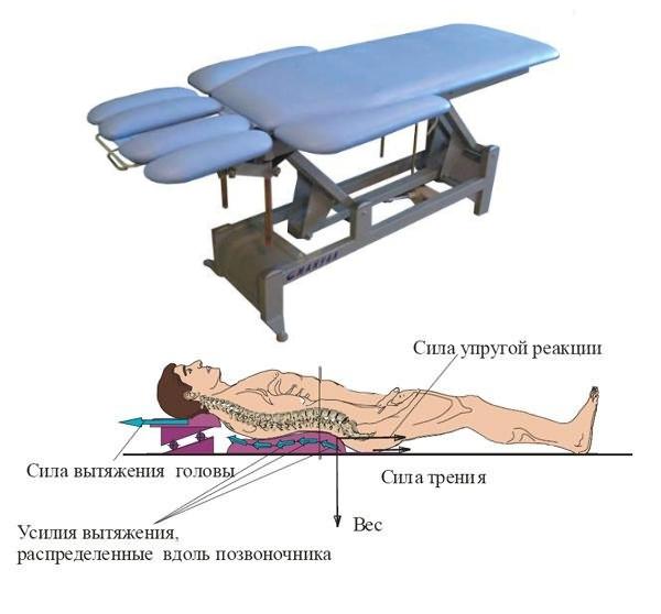 Механизм действия тракцинного стола