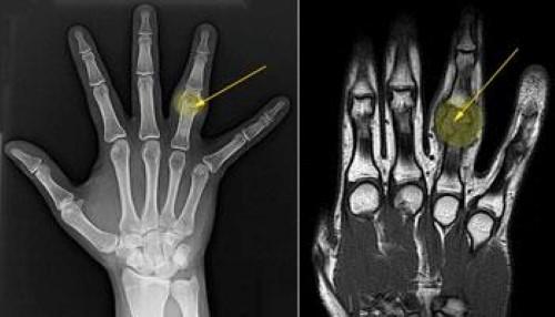 Диагностика остеобластомы на рентген снимке
