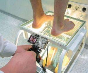 Диагностика плоскостопия в клинике