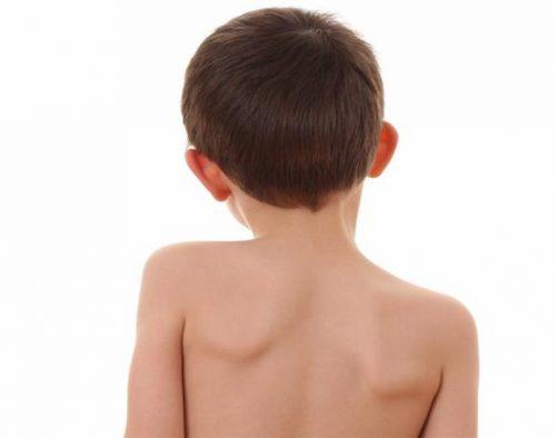 Дисплатический сколиоз у ребенка