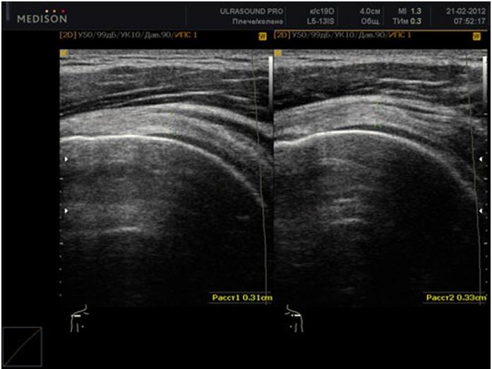 Дисплазия тазобедренного сустава на УЗИ