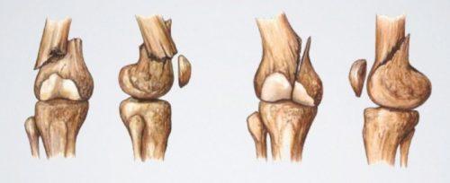 Дистальные переломы бедренной кости