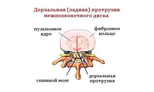 Дорзальная (задняя) протрузия диска