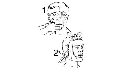 Доврачебная повязка при вывихе челюсти