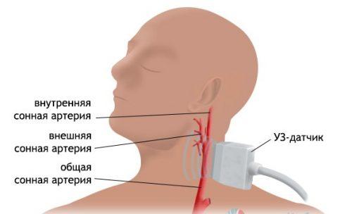Дуплексное УЗИ сканирование