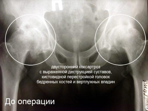 Двусторонний коксартроз на рентген снимке