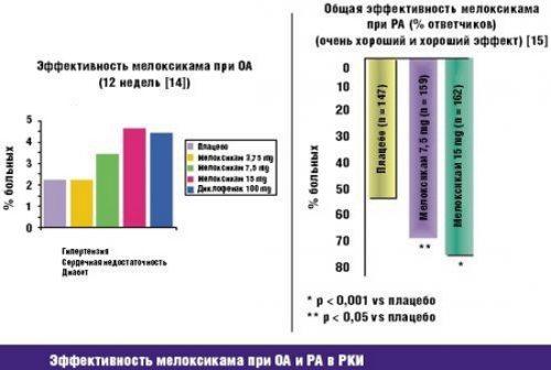Эффективность мелоксикама при реактивном артрите