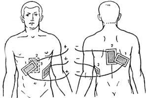 Электрофорез грудины