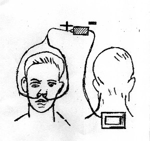 Электрофорез носа