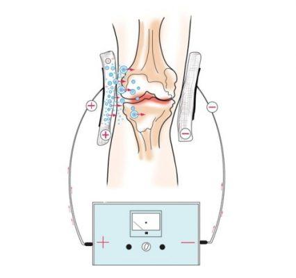 Электрофорез при периартрите колена