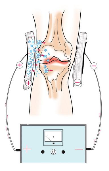 Электрофорез колена