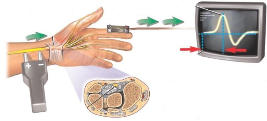 Электромиография нервов руки