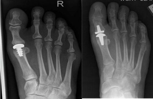 Эндопротезирование большого пальца стопы
