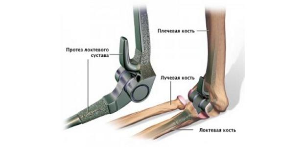 Эндопротезирование локтевого сустава