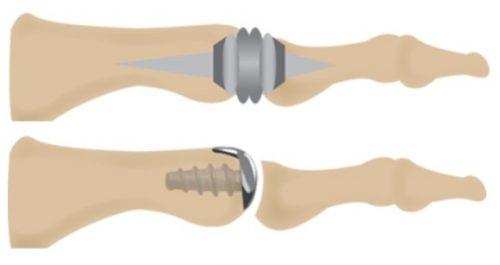 Эндопротезирование пальца стопы
