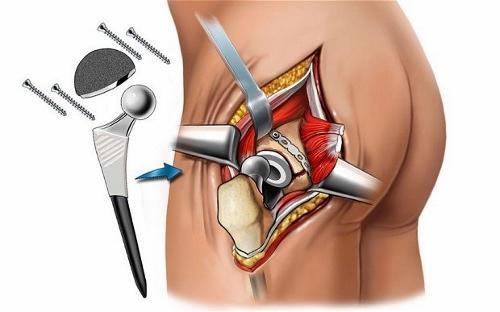 Эндорпротезирование тазобедренного сустава