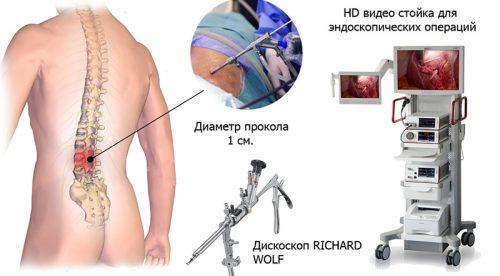 Эндоскопическое удаление кисты позвоночника