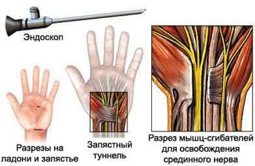 Эндоскопия лучезапястного сустава