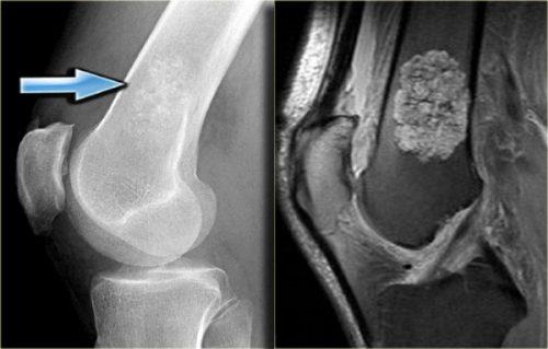 Энхондрома на рентген снимке и МРТ