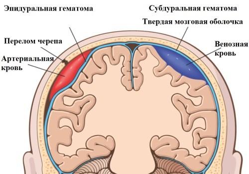 Эпидуральная и субдуральная гематома