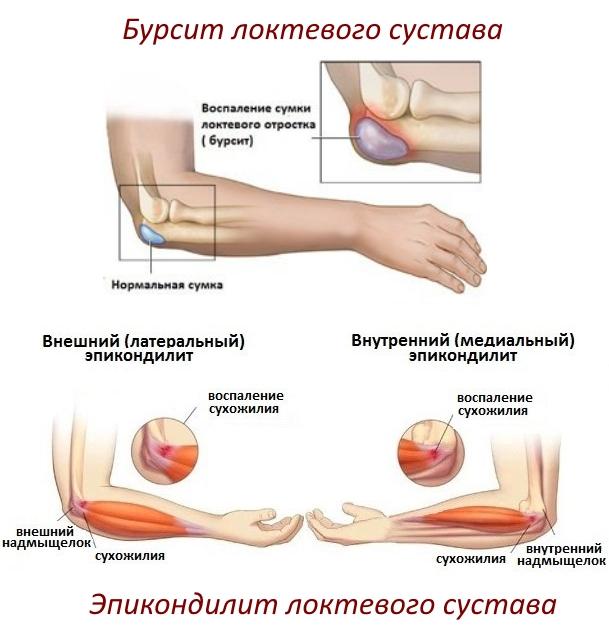 Эпикондилит и бурсит локтевого сустава