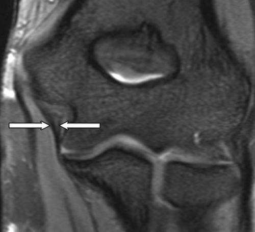 Эпикондилит локтевого сустава МРТ