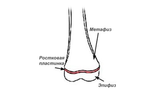 Эпифизеолис или перелом Салтера-Харриса