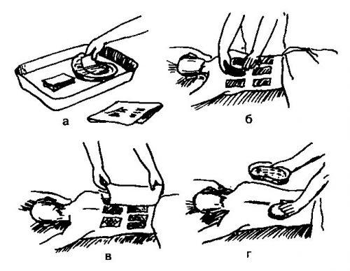 Этапы применения горчичников