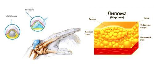 Фиброма, гигрома и липома