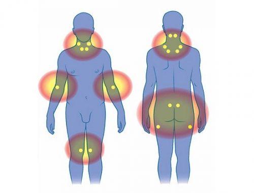 Мышечно-суставная фибромиалгия