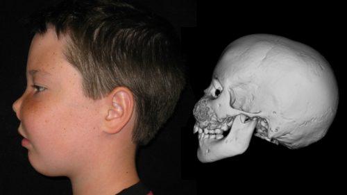 Проявление фиброзной дисплазии черепа