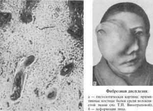 Обширная фиброзная дисплазия кости черепа