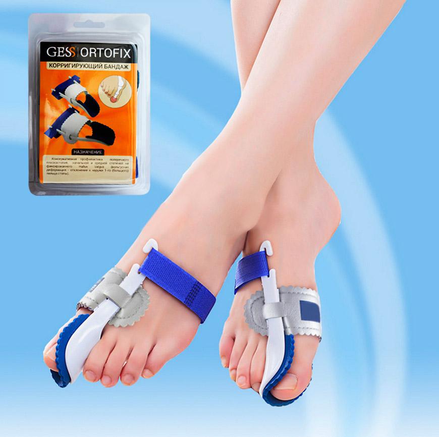 Фиксатор Ortofix Gess при вальгусной деформации ног