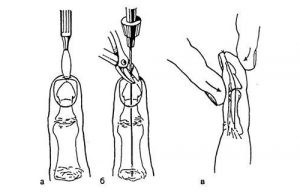 Фиксация спицей пальца