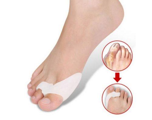 Использование фиксаторов для лечения большого пальца стопы
