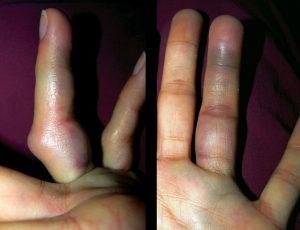 Гематомы и опухание пальца