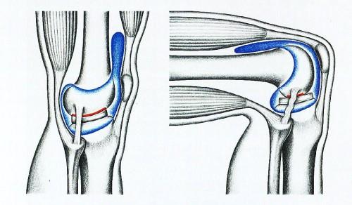 Заболевание гидрартроз сустава