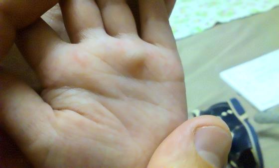 Гигрома или ганглион на ладони