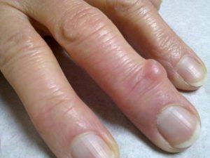 Рост гигромы на пальце