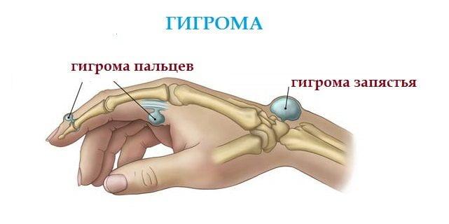 Гигрома суставов пальцев рук