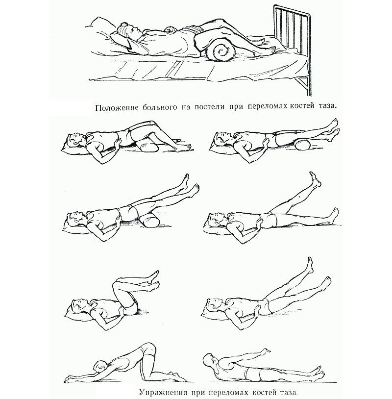 Гимнастика при переломе костей таза