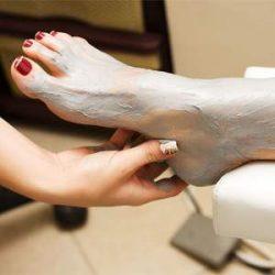 Лечение артроза стоп глиной