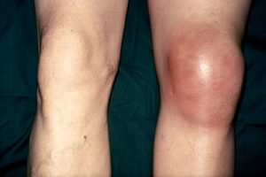 Опухоль колена при бурсите