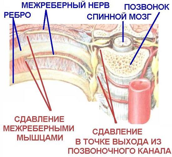 Сдавливание нерва грудной клетки при остеохондрозе